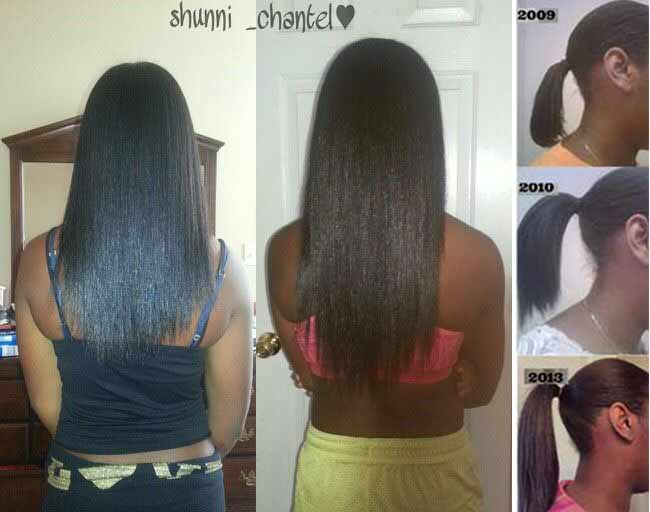African American black hair growth with biotin before and after