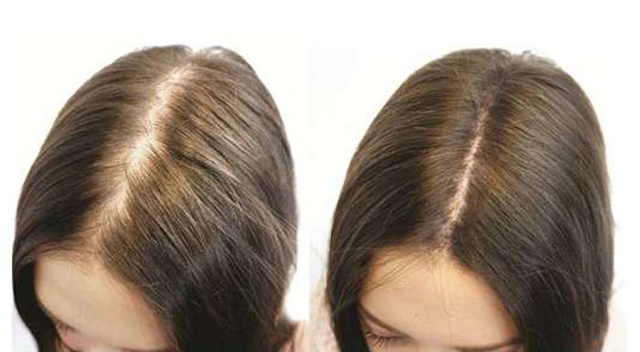 biotin before and after results-women