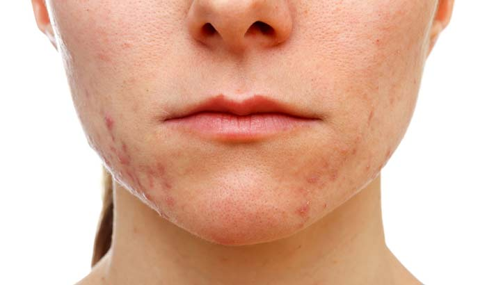a look at the causes and effects of acne When acne is not acne 5 skin conditions that can look like medication side effects, and even vitamin deficiencies can cause conditions that look like acne.