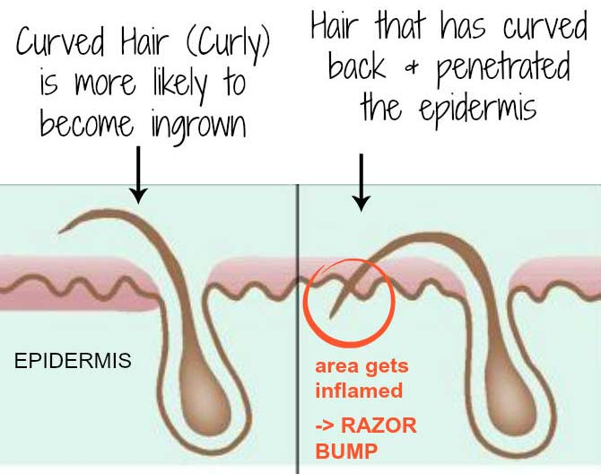What Is Ingrown Hair Pictures Symptoms Severe Hurting