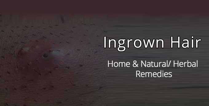 natural home remedies for ingrown hairs
