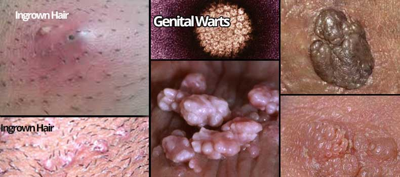 Genital Wart vs Ingrown Hair