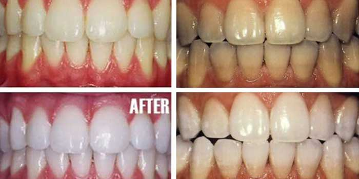 Turmeric teeth whitening Before and after pictures