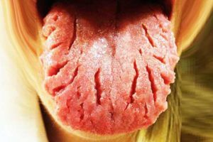 Cracks in/on tongue meaning, causes, symptoms, how to cure-treatment