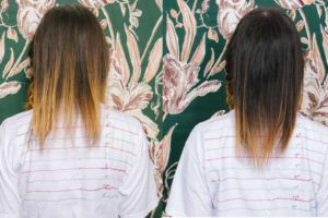 Monistat for hair growth, reviews , before and after results