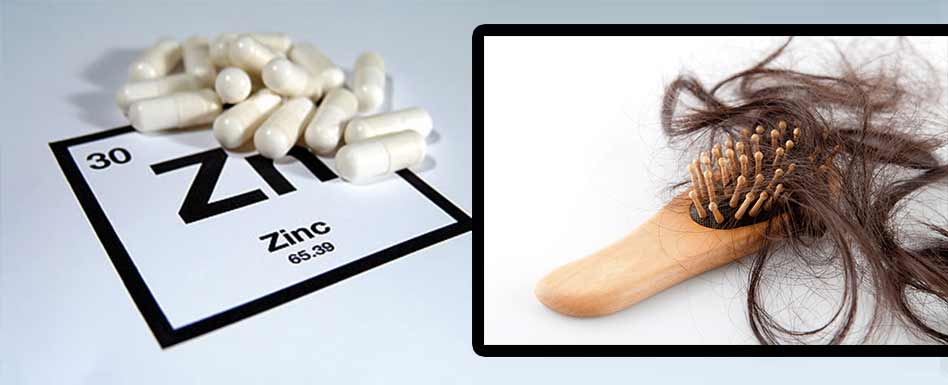 zinc-and-hair-loss-reversal-dosae-supplements