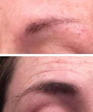 Castor Oil for Eyebrows Growth before and after