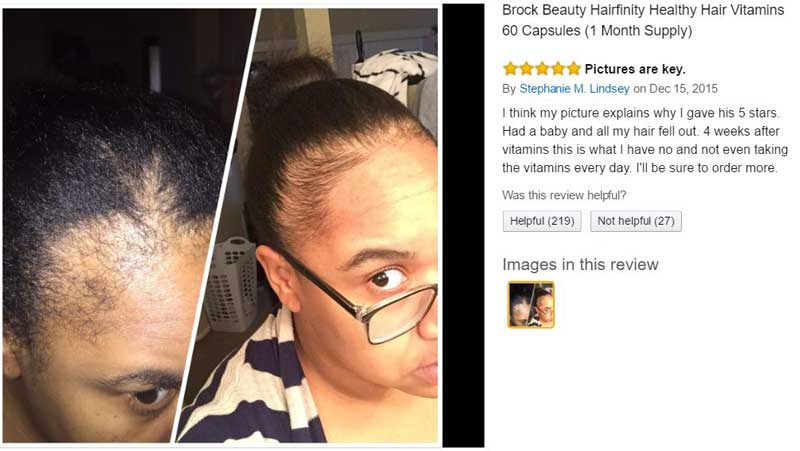 hairfinity-reviews-rating-before-after-picture