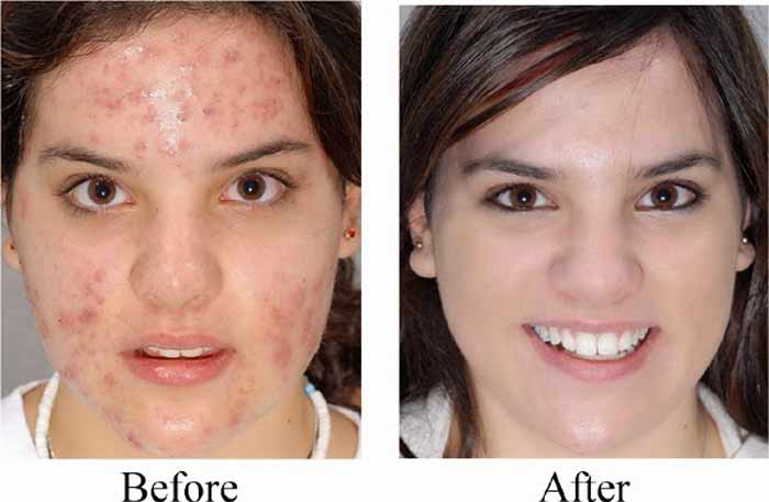 Castor oil-pimples before after pictures