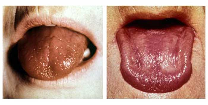 burning mouth syndrome photos