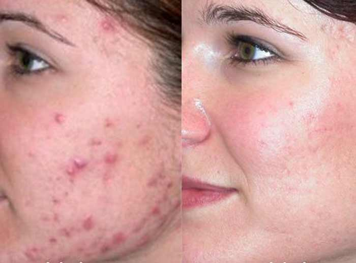 castor oil skin acne scars before  and after reviews