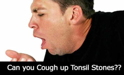 cough up tonsil stones