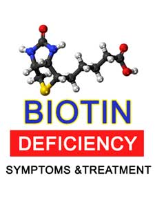Biotin Deficiency Symptoms and Treatment