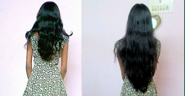 Biotin For Hair Before After