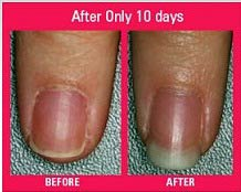 biotin for nails before after
