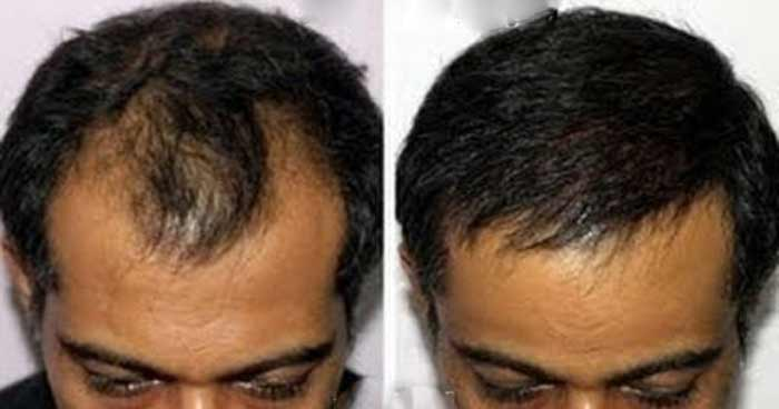 Hair growth/loss with biotin in Men before and after pictures