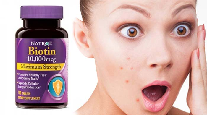 Does biotin cause acne?