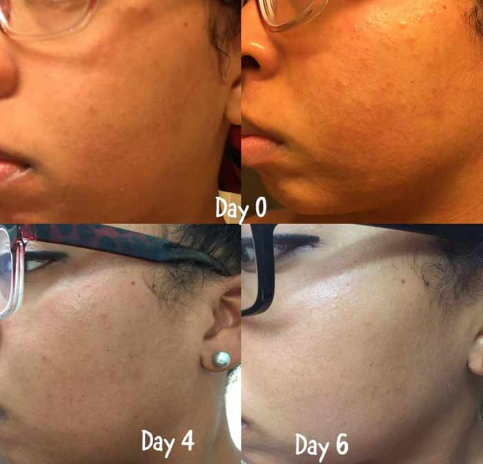 aztec clay mask acne pimples spots scars before and after