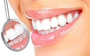 Bentonite-Clay-Teeth-Whitening-Does-it-work