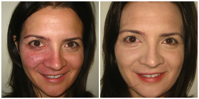 Port WinevStain before-after treatment adults