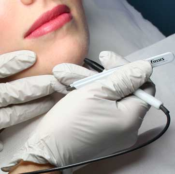 Infrown Hair on face-Beard chin & Cheek removal electrolysis