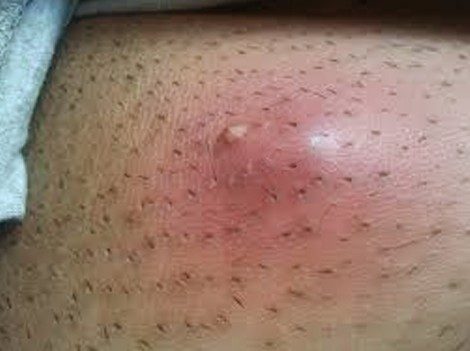 ingrown hair cyst get rid large deep pictures