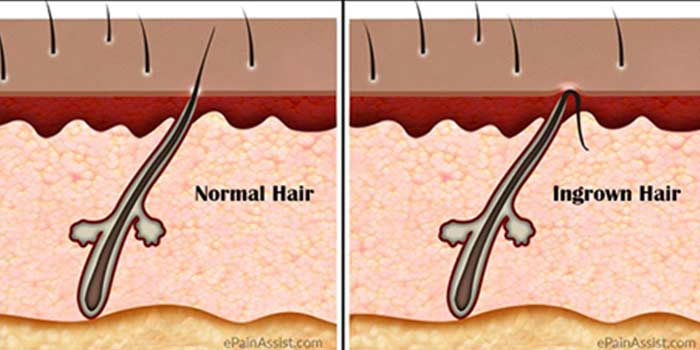 Ingrown Hair on Head Scalp Pictures, Symptoms, Removal