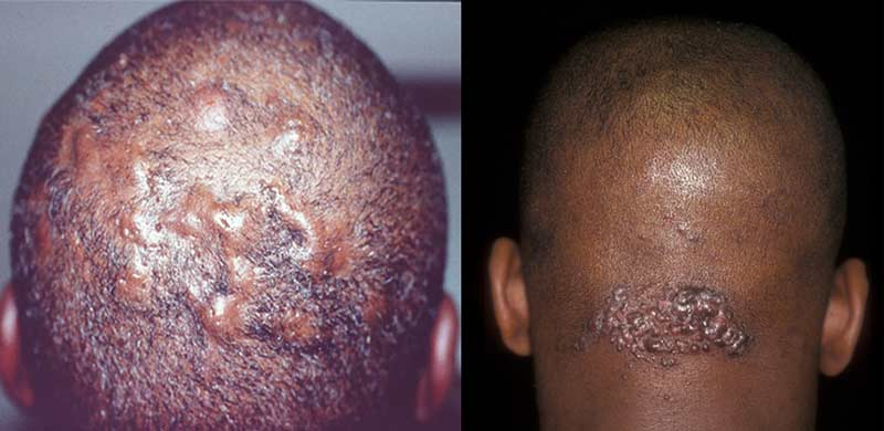 ingrown-hair-on-scalp-back-back-of-head-causes-symptoms-removal-