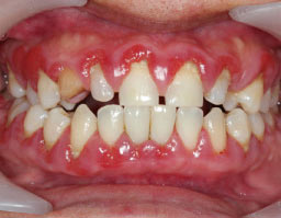 Is turmeric good for gum disease
