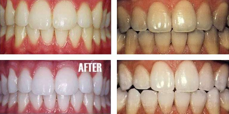 Baking Soda Teeth whitening results before and after