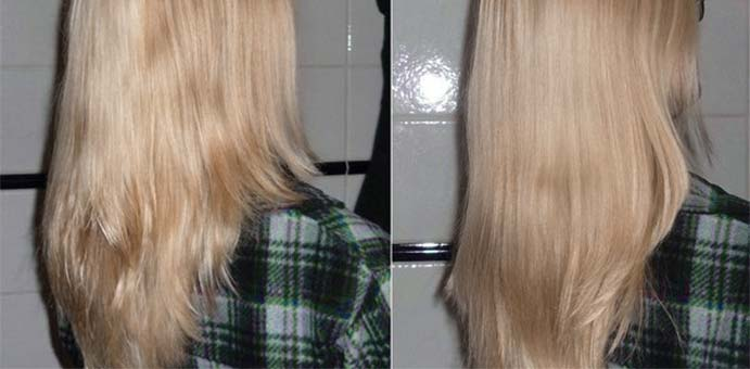 msm-hair-growth-before-after-results
