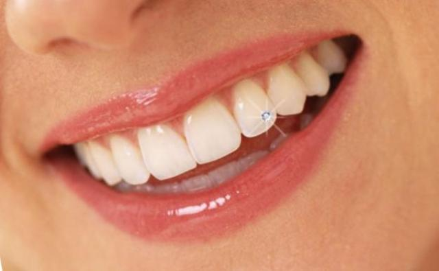 Tooth Piercing Cost, how-to Procedure, Jewelry gem Diamond Complications & Damages