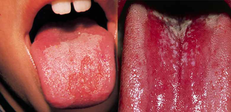 red patches-tongue causes get rid