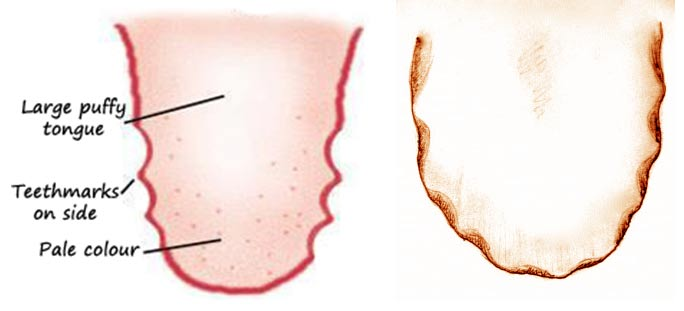 scalloped tongue causes thyroid-meaning, pictures, diagnosis and treatment