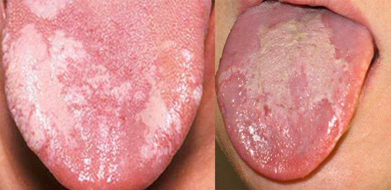White Patches On Tongue Red Patches On Side Back Of Tongue