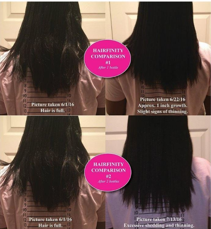 hairfinity results, 1-2-3 months with pictures