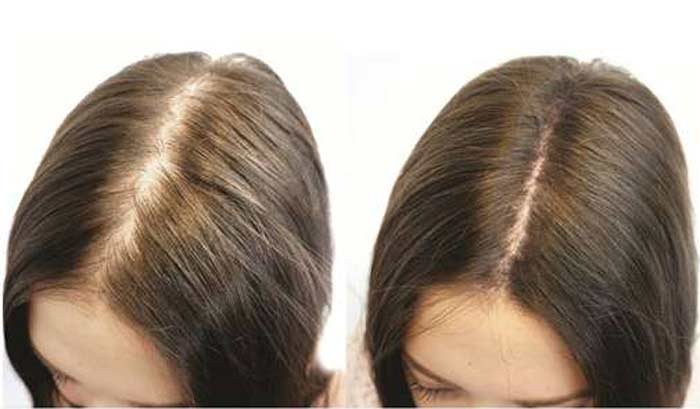 Hair Color Spray Side Effects