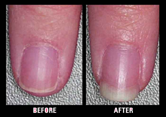 biotin for nails before and after picture