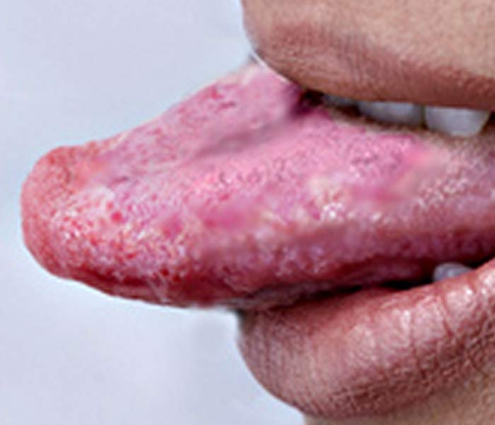 Burning Mouth Syndrome Pictures