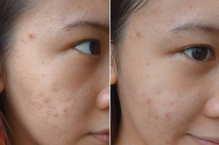 bentonite mud face mask before after