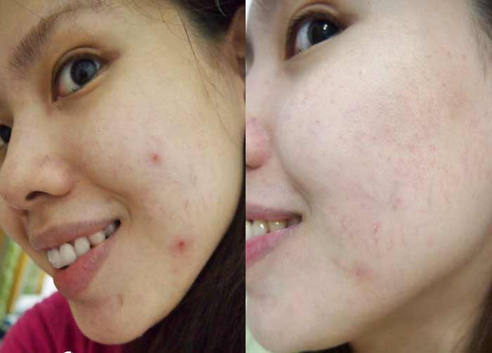 green tea acne before after results pic