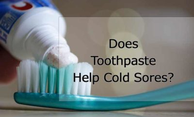 Toothpaste on cold sore home remedy-