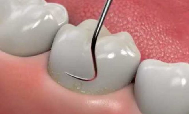 how to deep clean teeth and gums at home