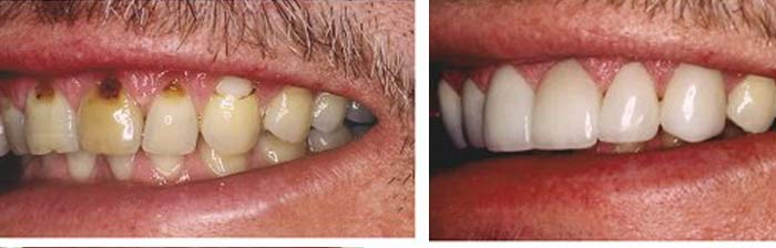 Periodontal Scaling and Root Planning before and after results