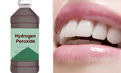 hydrogen peroxide teeth whitening how to use, dangers and side effects