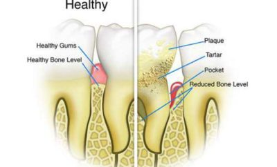 plaque vs tartar, differences and similarities