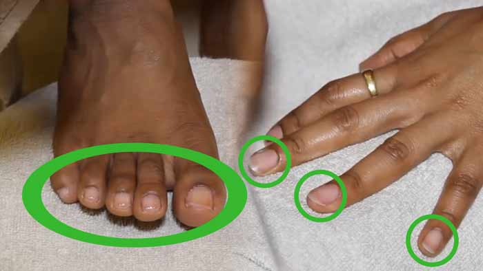Fingernails and Toenails-dents-pitting