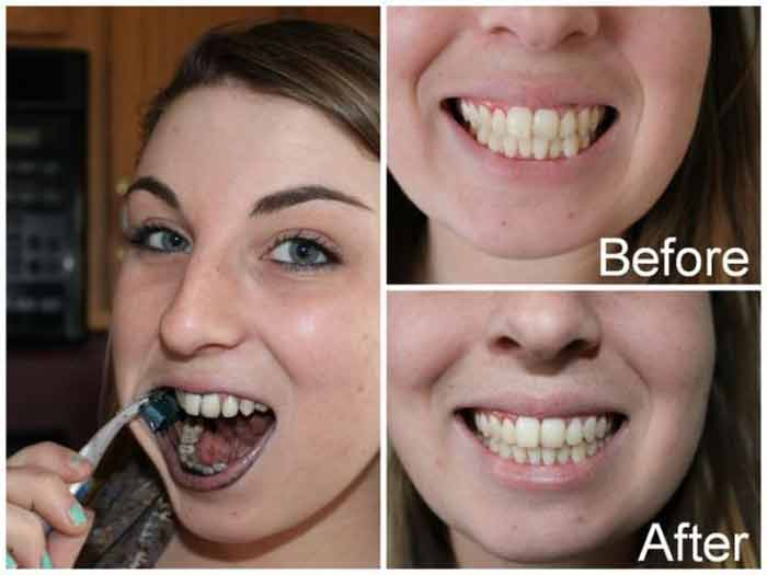 activated charcoal teeth whitening side effects