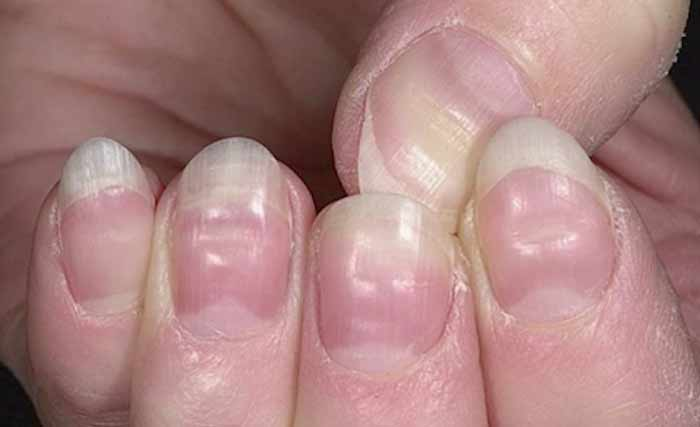 grooves dents in nails pictures