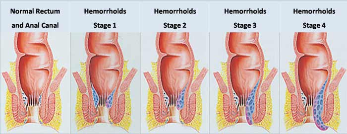 How Long Do Hemorrhoids Last Do They Go Away On Their Own How To